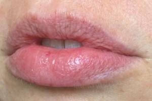 bare_lips